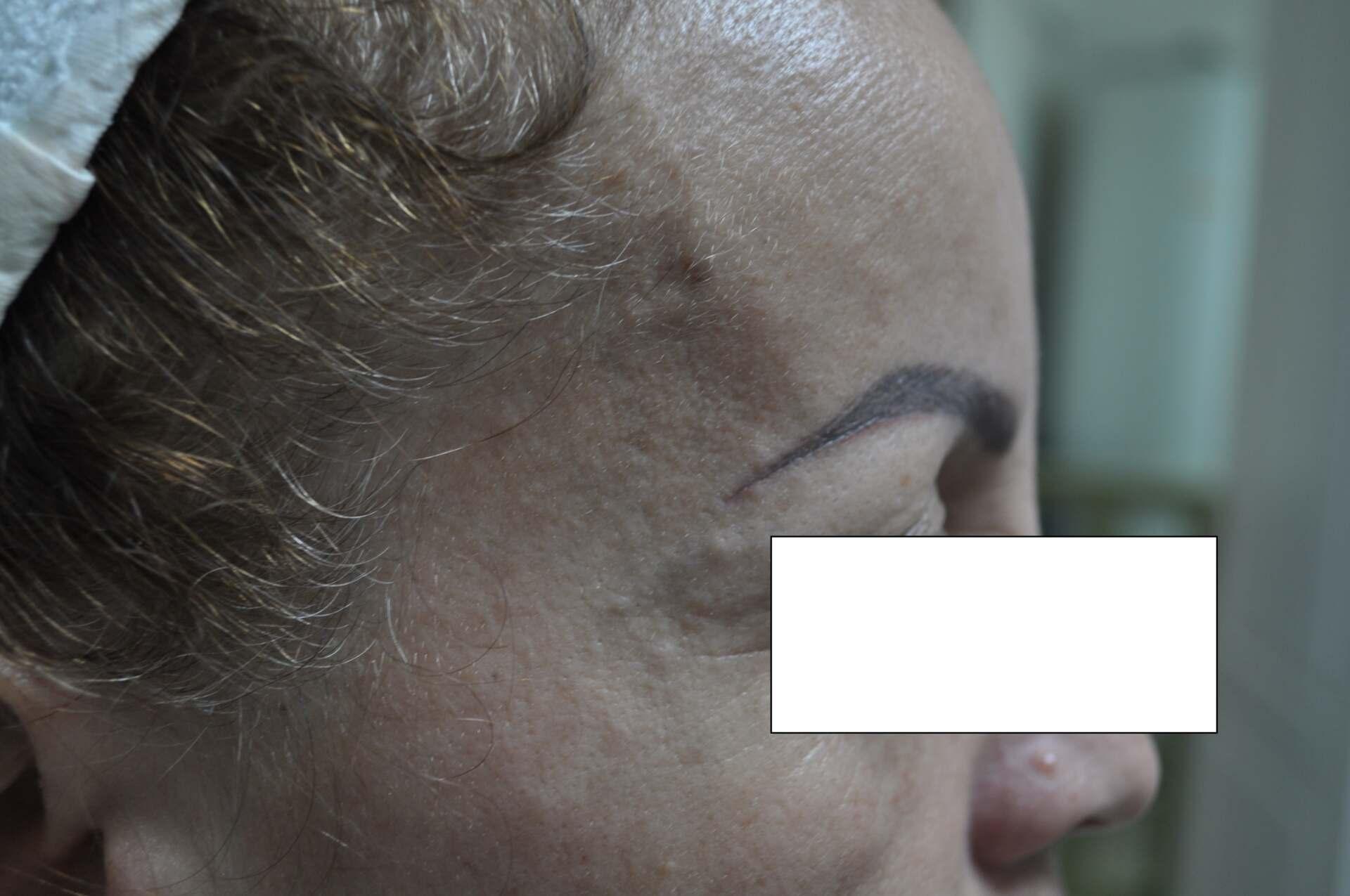 Profil-Après