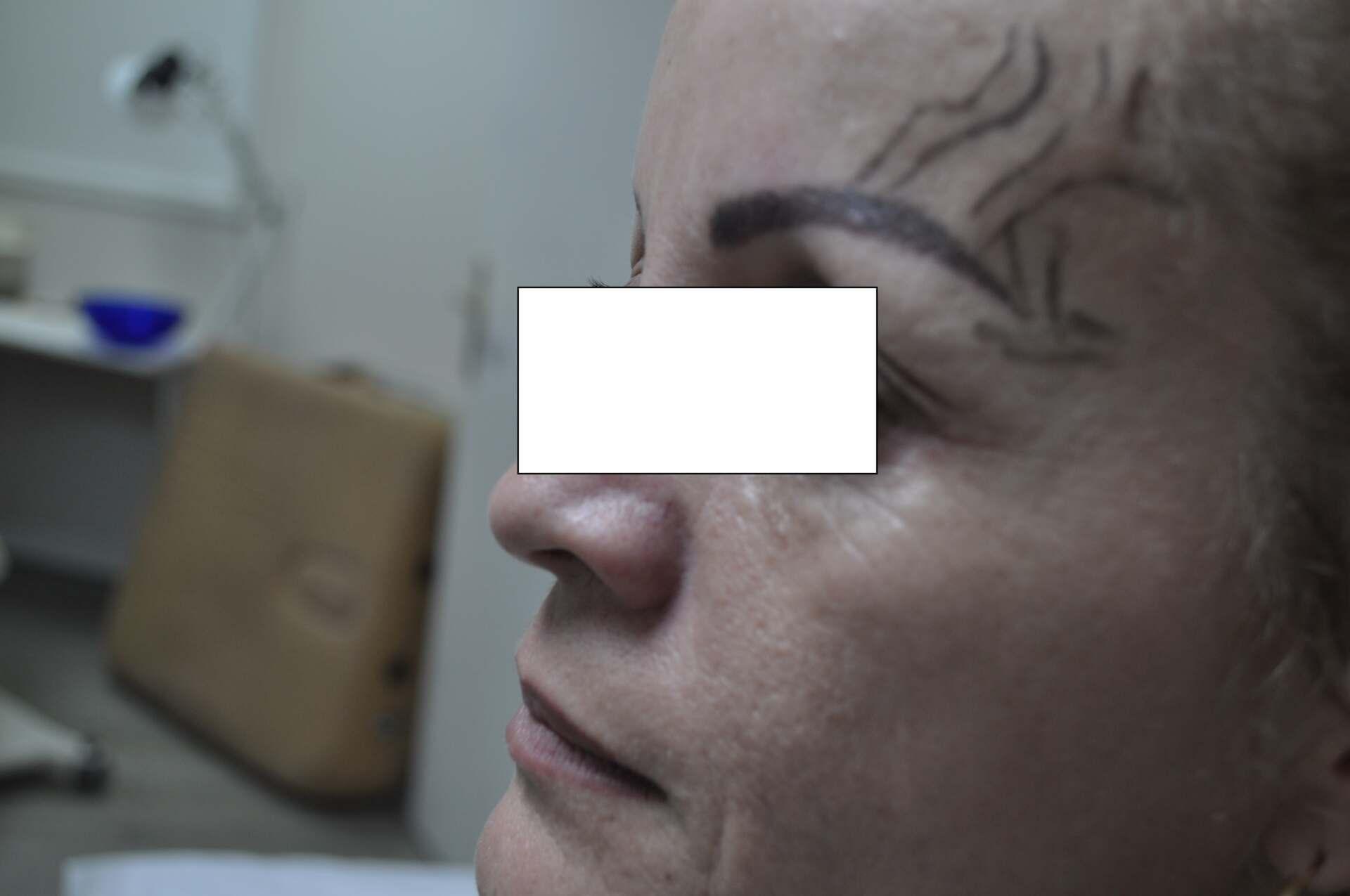 Profil-Avant